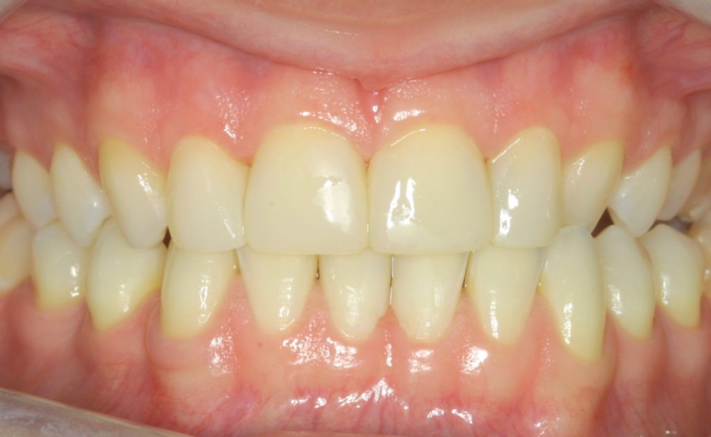Veneers whitening after
