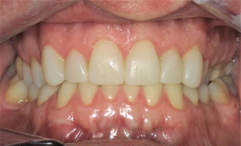 Dental Case Studies