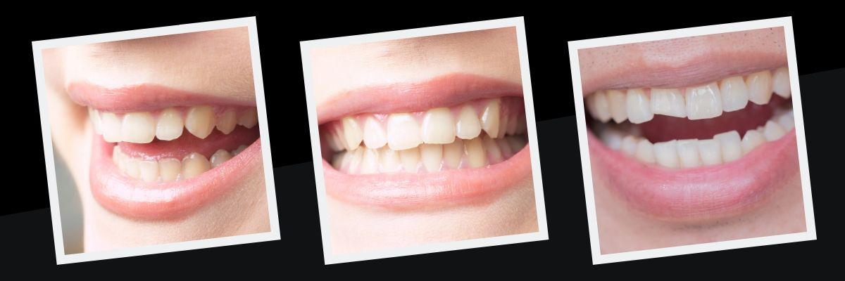 Are You Ready To See How We Can Transform Your Smile