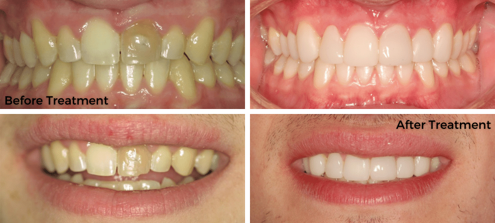 Before & After Treatment (1)