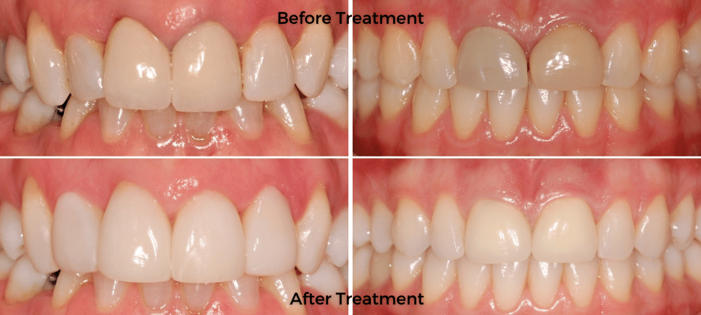 Before & After Treatment